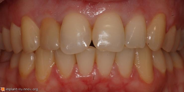 1.Восстановление формы зубов.