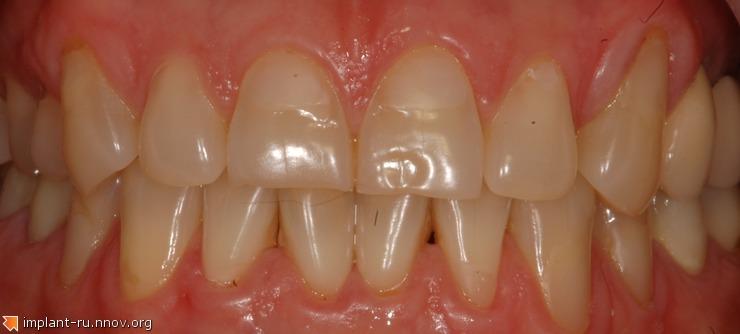 1.Изменеие цвета зубов.