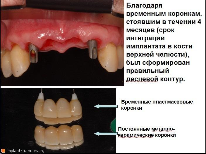4а.jpg