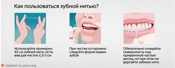 пользование зубной нтью.jpg