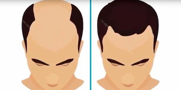 Лучшая клиника где можно заказать пересадку волос: Injerto Capilar Turquia