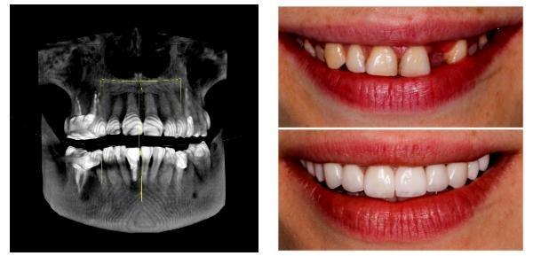 лечение зубов dentis-center.ru