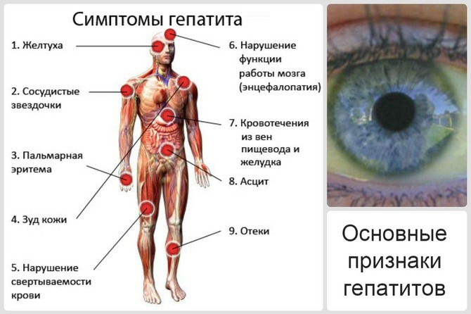 simptom---gepatita-s-u-muzhchin.jpg