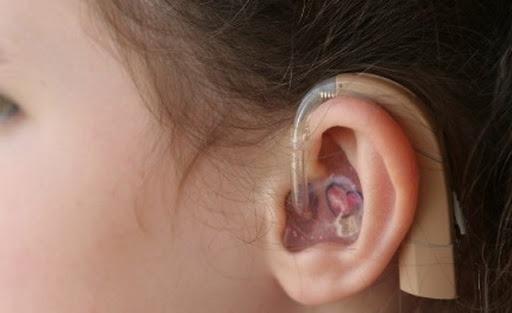 слуховой аппарат r-sluh.ru СПб